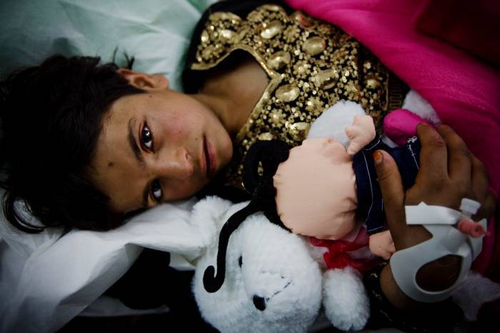 Bibi, an 8 year old girl, lies on a stretcher waiting to be admitted to a ward. Kate Holt.