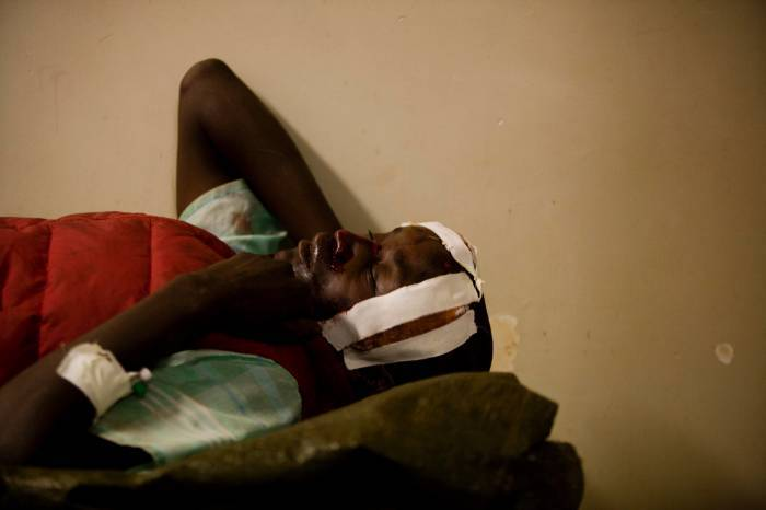 Scenes show how people in Kenya are injured and maimed as a result of Road Traffic Crashes. Kate Holt.
