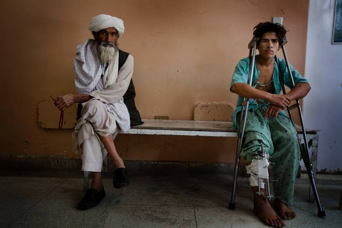 Taj Mohammed was badly injured in the leg when a bomb exploded in Mirwais Mina. Kate Holt.
