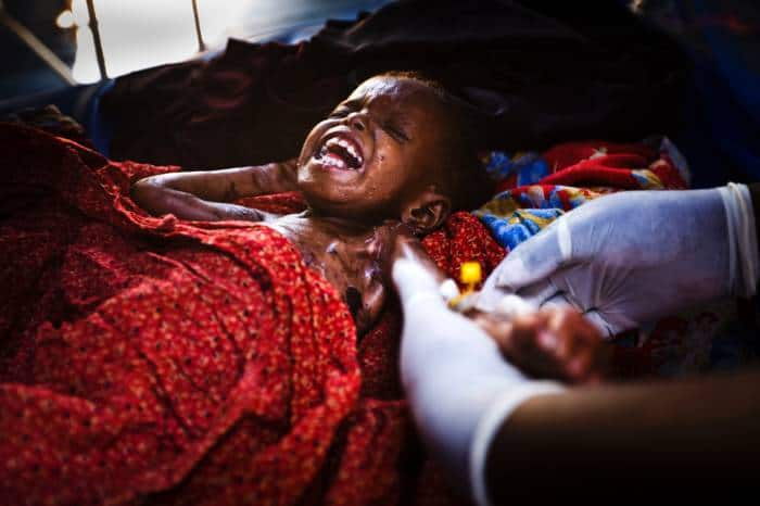 A child is treated for malnutrition at the medical centre established for the treatment of civilians. Kate Holt.