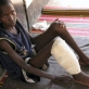 A young boy who is suffering from a severe leg infection that will not heal. Kate Holt.