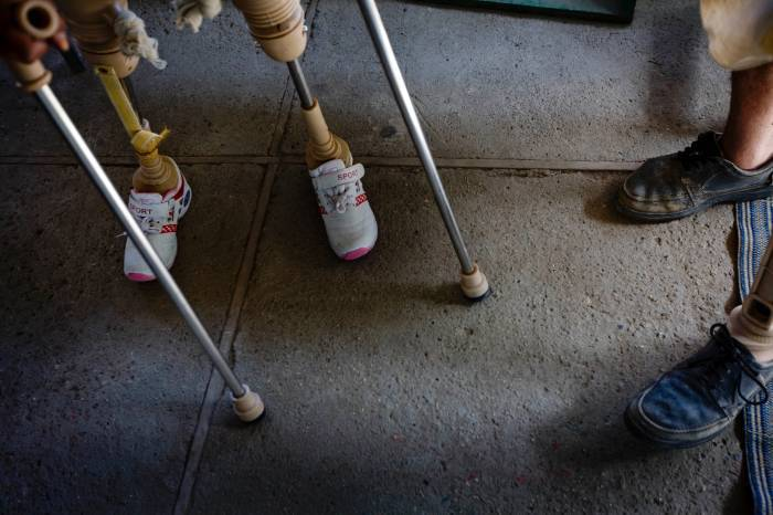 A boy practices walking with his prosthetic legs, after he lost both in an IED explosion. Kate Holt.