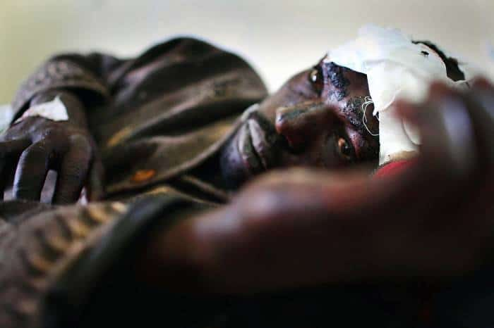A man lies in the male ward of Nakuru hospital after being hit on the head with a machete. Kate Holt.