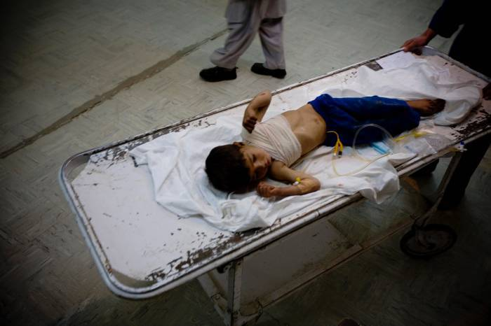 A young boy lies on a stretcher after being admitted to Bost Hospital, in Lashkar Gah, Helmand, Afghanistan. Kate Holt.