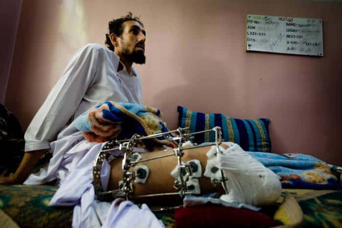 A man who had his leg shot in a drive by shooting by insurgents. Kate Holt.