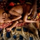 A mother holds her holds a severely malnourished child at a therapeutic feeding centre. Kate Holt.