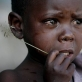 A young child whose family has been displaced cries in the therapeutic feeding center. Kate Holt.