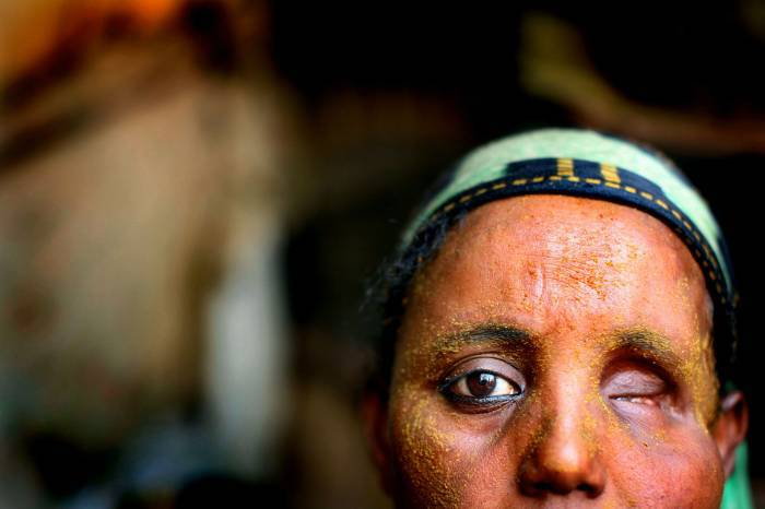 Portrait of a woman, who had her eye shot out in fighting in Mogadishu. Kate Holt.