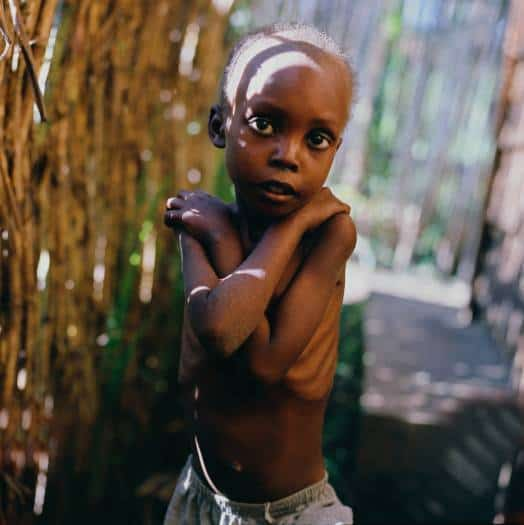 Grace was 9 years old and admitted weighing 9.7 kgs. His target weight was set at 11 Kgs. Kate Holt.