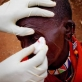Mooltetiein Salaash, 65 years old, has her bandages removed by Lester Moitai, a trachoma monitor. Kate Holt.