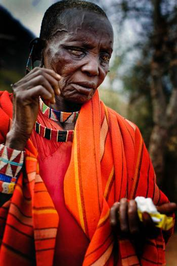 Mooltetiein Salaash, 65 stands outside her home after having her bandages removed. Kate Holt.