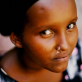 A beneficiary of Johanniters health projects in Deble Village, Djibouti. Kate Holt.