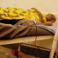 Kusanza lies in the infectious disease unit of Juba hospital receiving a blood transfusion. Kate Holt.