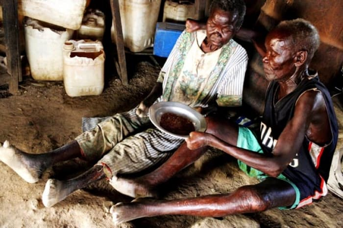 An elderly couple, who both suffered from leprosy over 30 years ago, share what little food they have. Kate Holt.