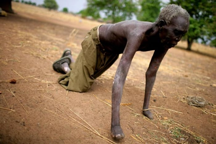 An elderly man who suffered from leprosy over ten years ago, is unable to walk or stand up any longer. Kate Holt.