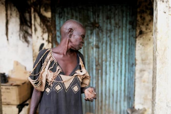 A former leprosy sufferer, now blind, lives on the streets in Juba. Kate Holt.