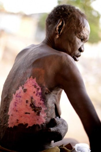 A former leprosy sufferer, shows a recent burn mark that the hospital refuse to treat. Kate Holt.