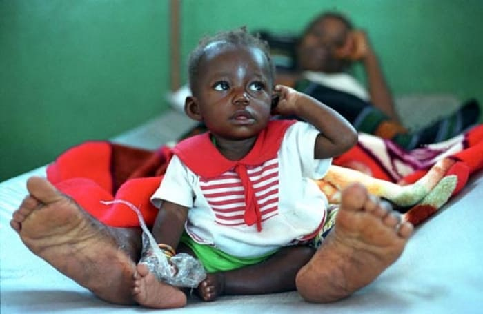A young child sits at the feet of her mother who is receiving treatment in the CTC. Kate Holt.